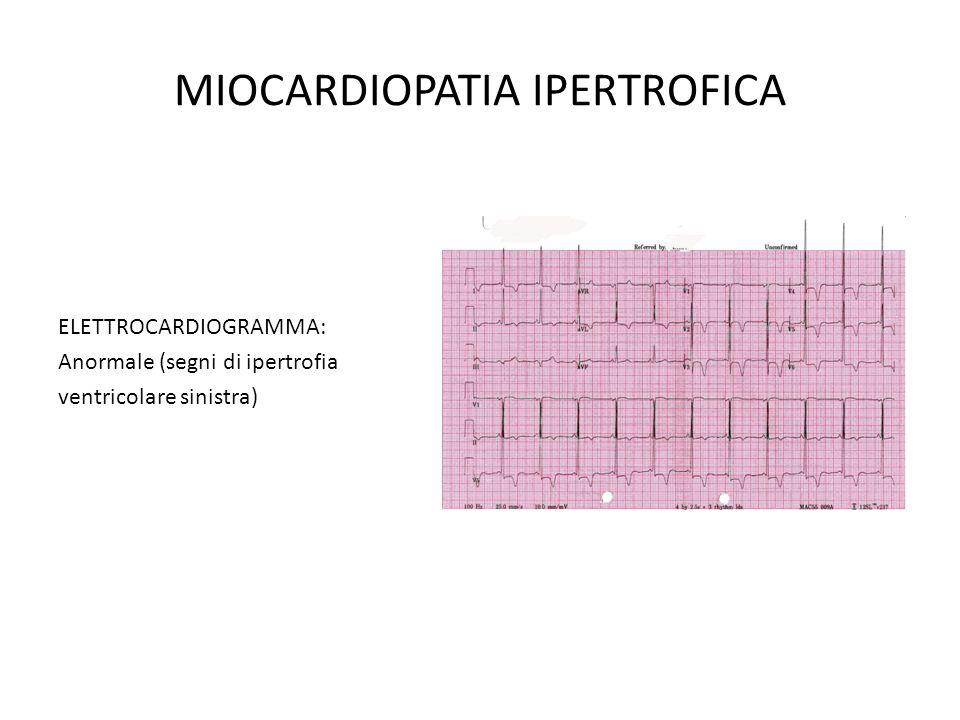 MIOCARDIOPATIA IPERTROFICA