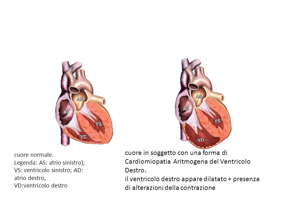 cuore in soggetto con una forma di Cardiomiopatia Aritmogena del Ventricolo Destro.