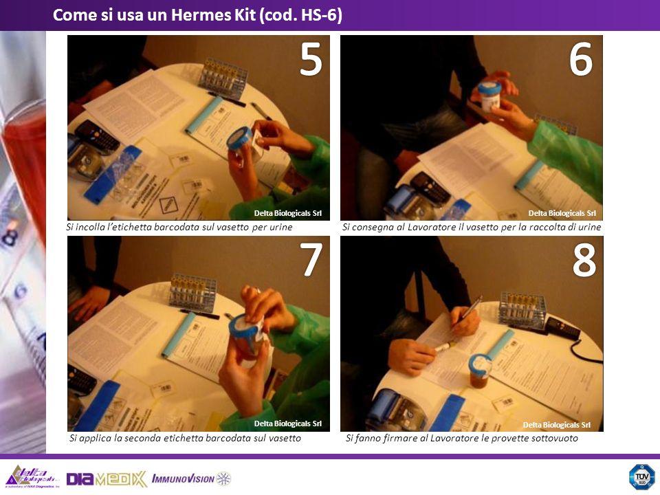 5 6 7 8 Come si usa un Hermes Kit (cod. HS-6)