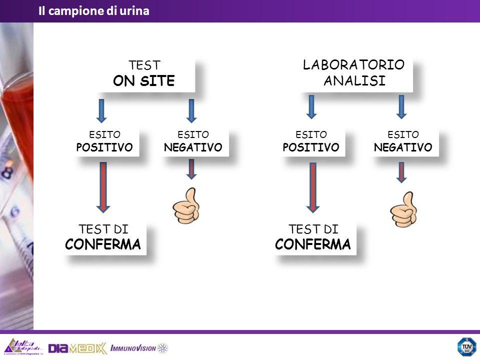 Il campione di urina LABORATORIO ANALISI TEST ON SITE TEST DI CONFERMA