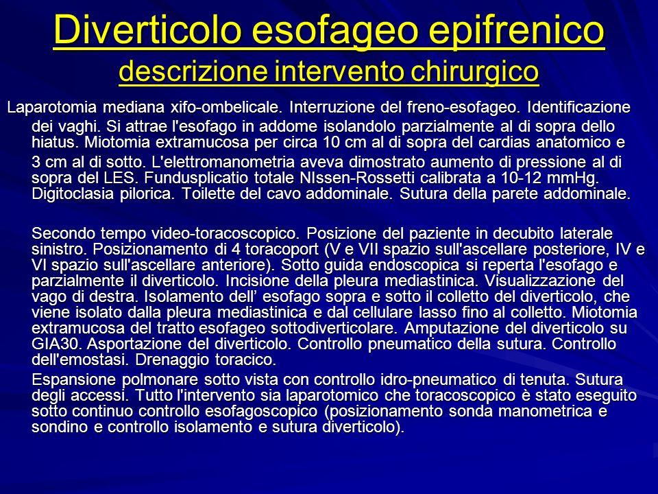 Diverticolo esofageo epifrenico descrizione intervento chirurgico
