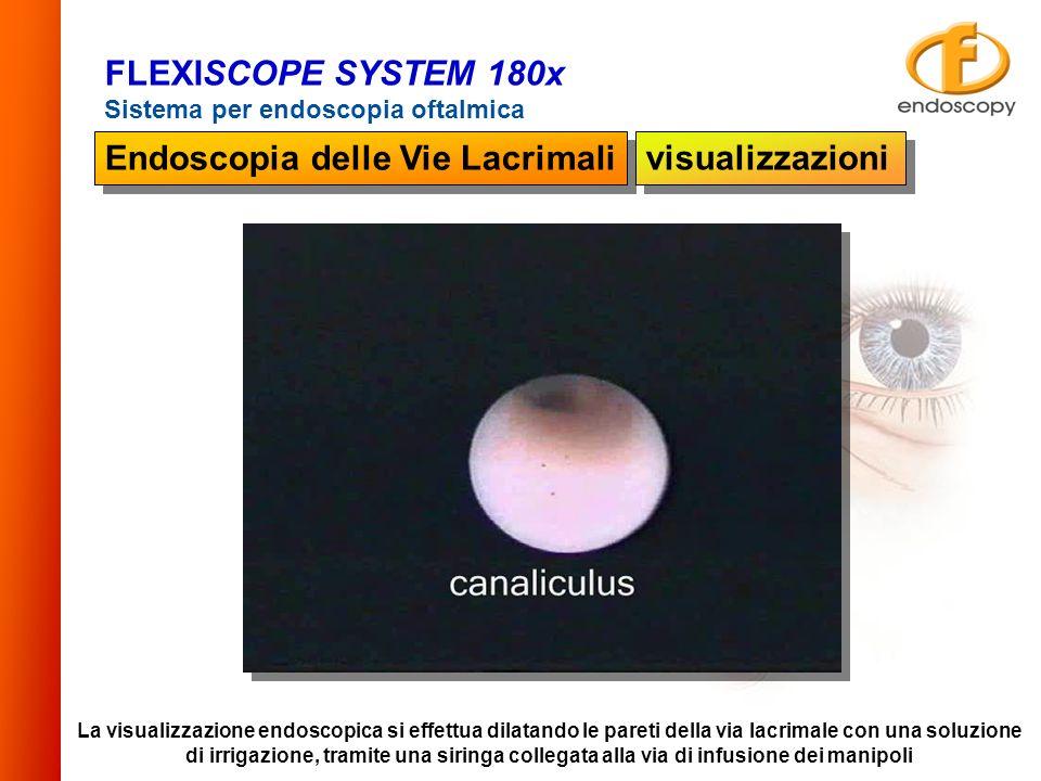 Endoscopia delle Vie Lacrimali visualizzazioni