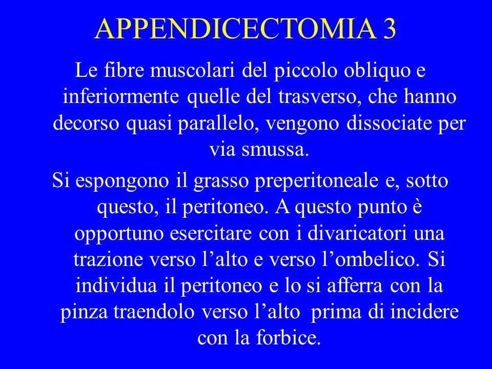 APPENDICECTOMIA 3
