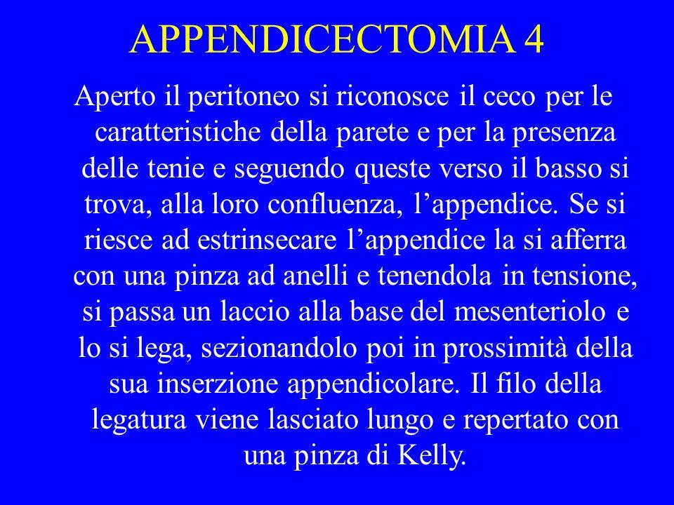 APPENDICECTOMIA 4