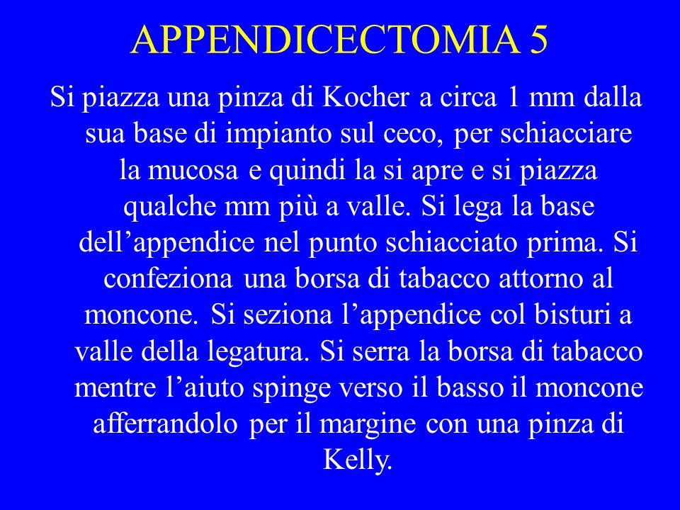 APPENDICECTOMIA 5
