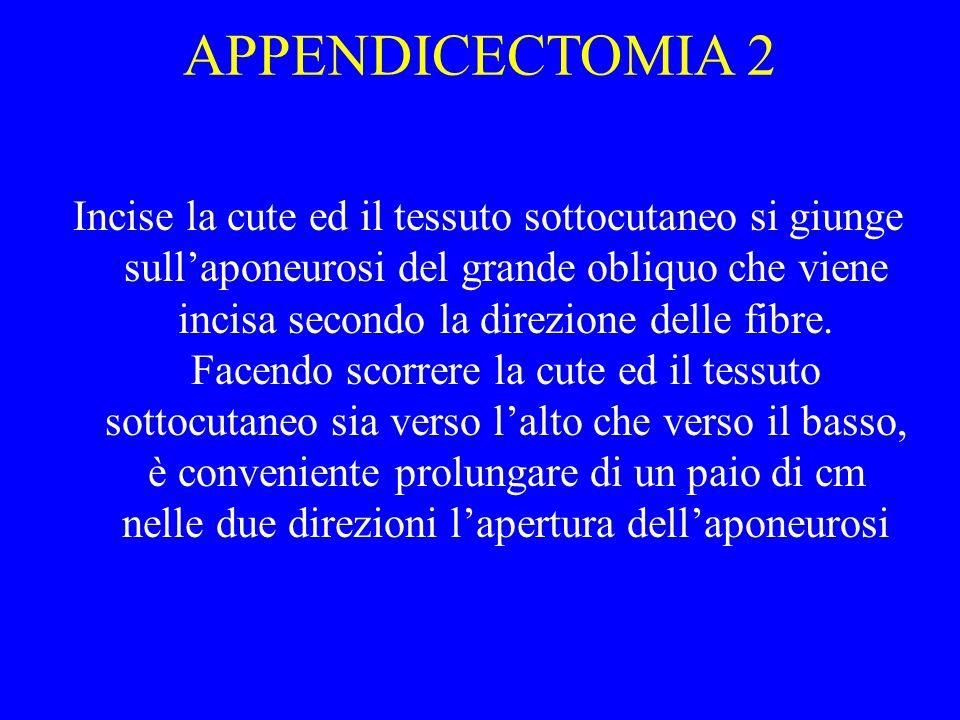 APPENDICECTOMIA 2