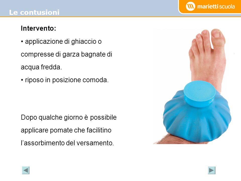 Le contusioni Intervento: applicazione di ghiaccio o compresse di garza bagnate di acqua fredda. riposo in posizione comoda.