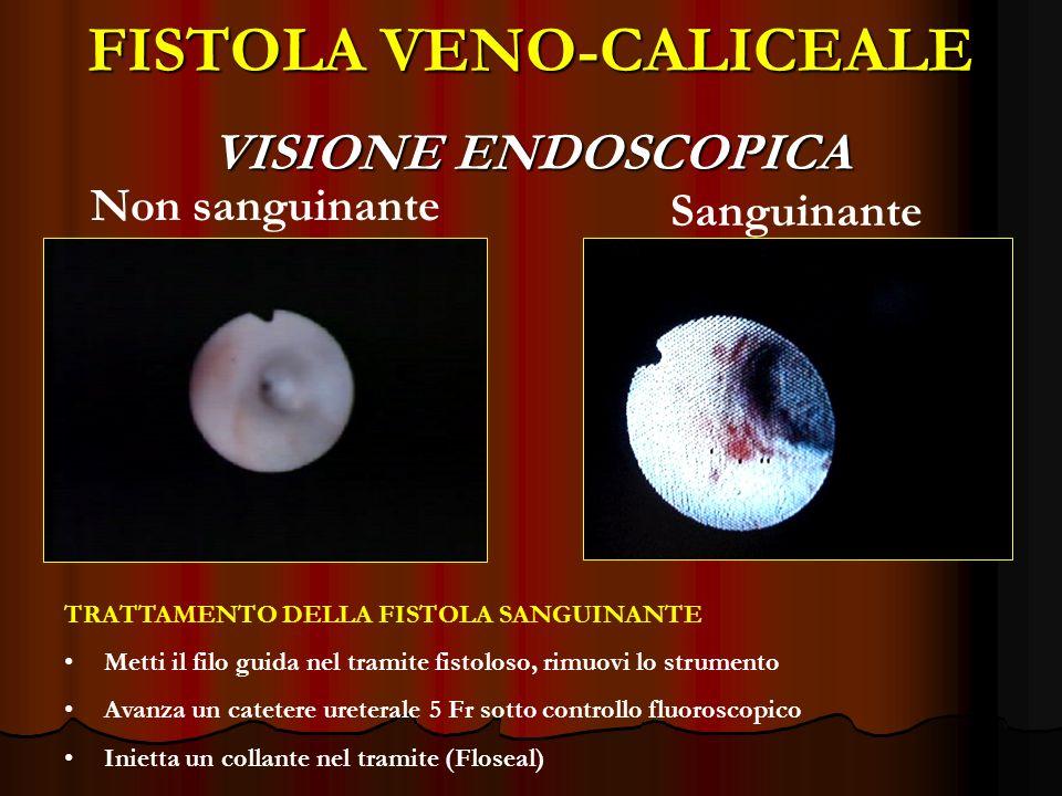 FISTOLA VENO-CALICEALE