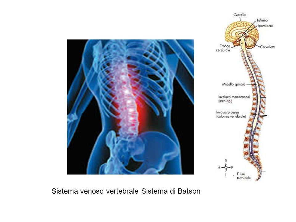 Sistema venoso vertebrale Sistema di Batson