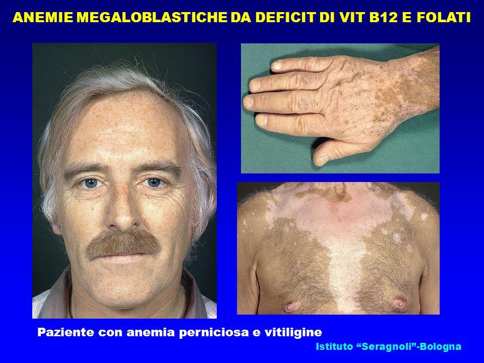 ANEMIE MEGALOBLASTICHE DA DEFICIT DI VIT B12 E FOLATI