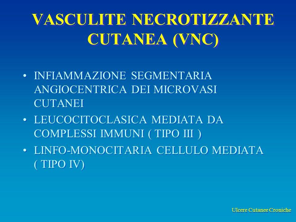 VASCULITE NECROTIZZANTE CUTANEA (VNC)
