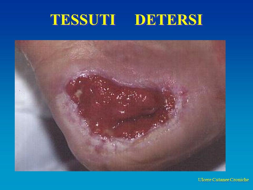 Ulcere Cutanee Croniche