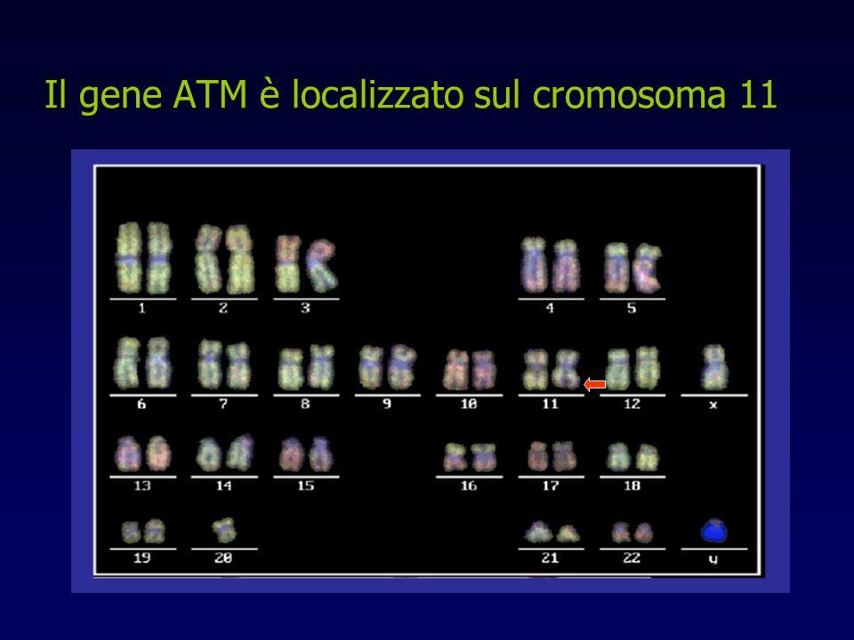 Il gene ATM è localizzato sul cromosoma 11