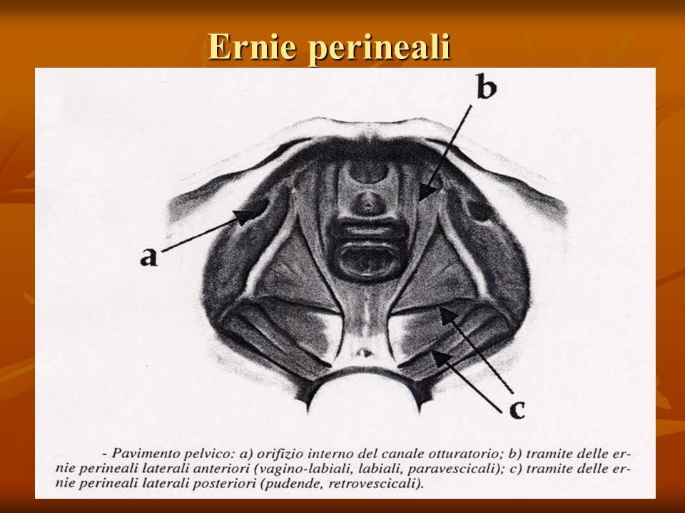 Ernie perineali