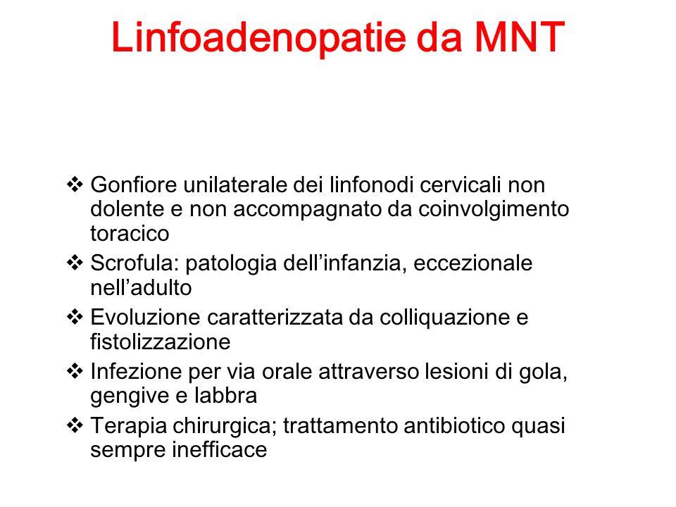Linfoadenopatie da MNT