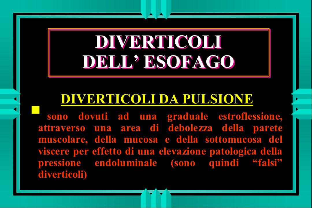 DIVERTICOLI DELL' ESOFAGO