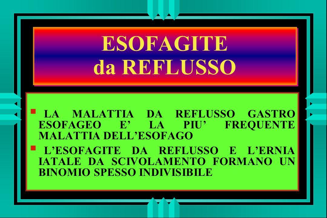 ESOFAGITE da REFLUSSO LA MALATTIA DA REFLUSSO GASTRO ESOFAGEO E' LA PIU' FREQUENTE MALATTIA DELL'ESOFAGO.