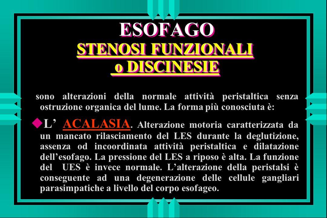 ESOFAGO STENOSI FUNZIONALI o DISCINESIE