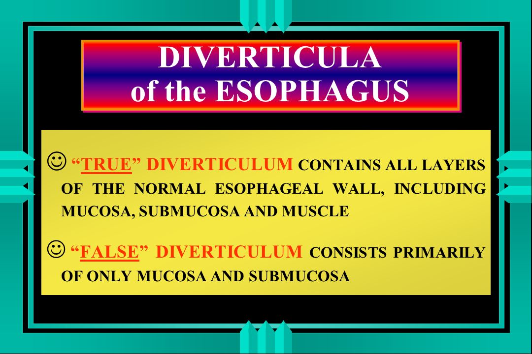 DIVERTICULA of the ESOPHAGUS