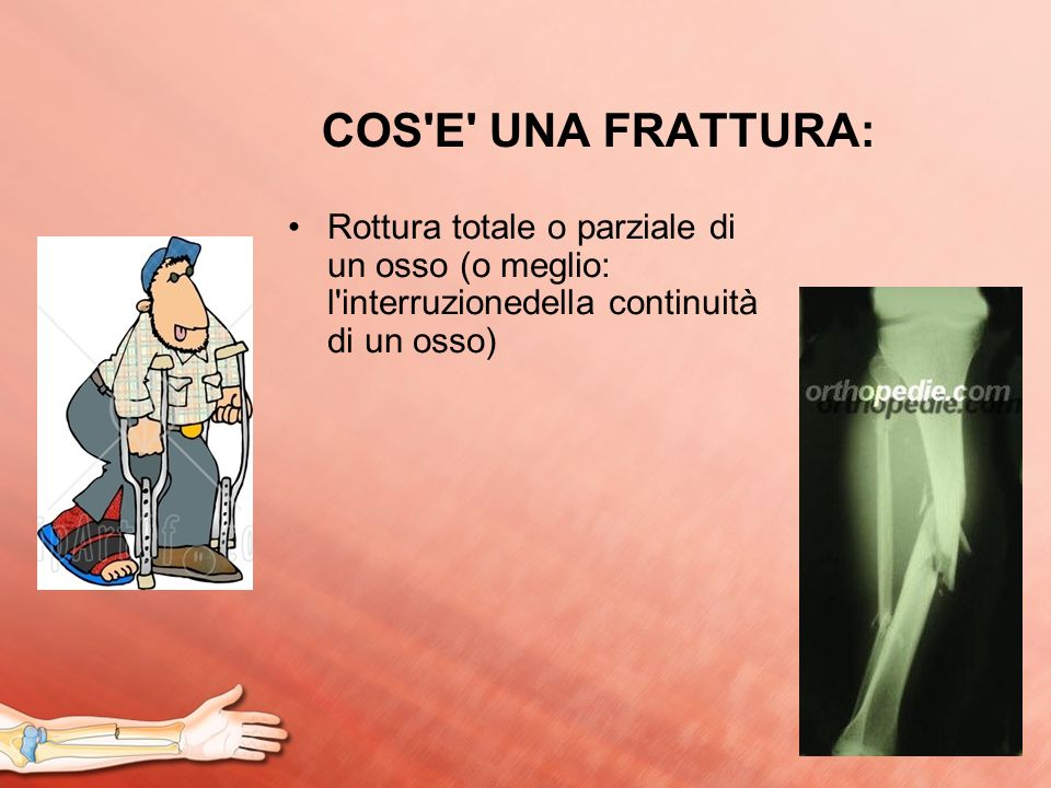 COS E UNA FRATTURA: Rottura totale o parziale di un osso (o meglio: l interruzionedella continuità di un osso)