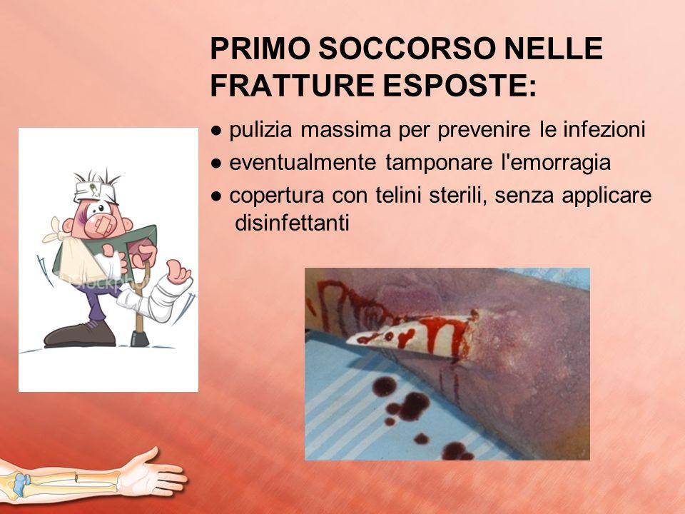 PRIMO SOCCORSO NELLE FRATTURE ESPOSTE: