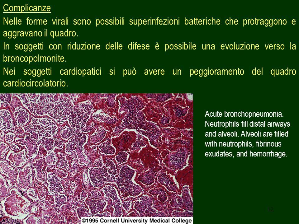 Complicanze Nelle forme virali sono possibili superinfezioni batteriche che protraggono e aggravano il quadro.