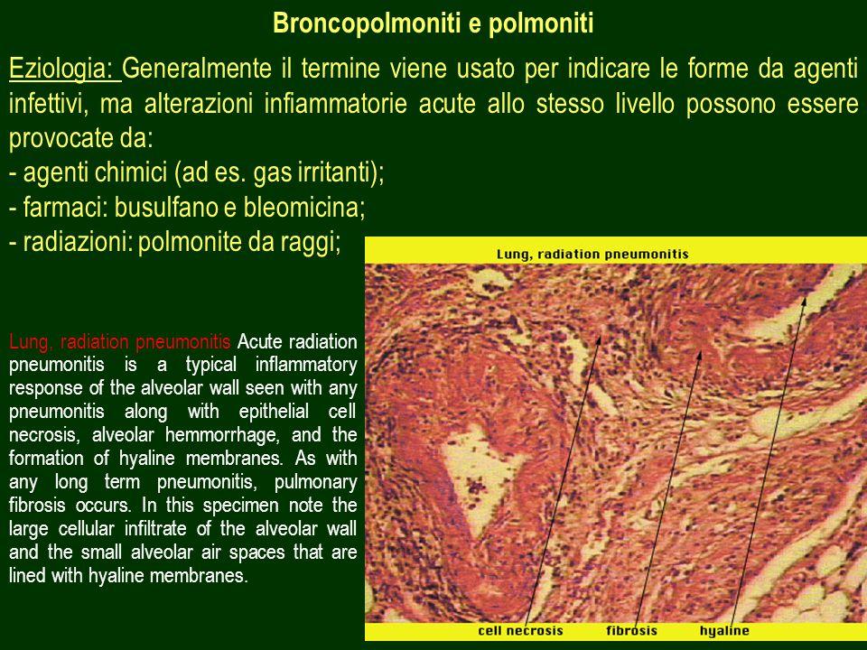 Broncopolmoniti e polmoniti