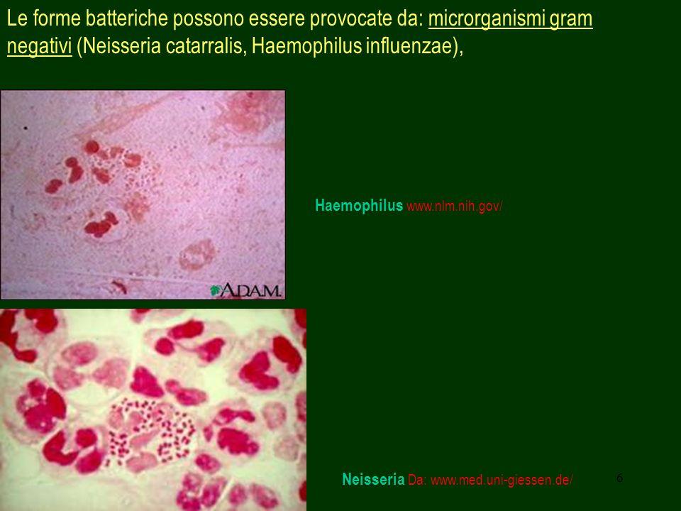 Le forme batteriche possono essere provocate da: microrganismi gram negativi (Neisseria catarralis, Haemophilus influenzae),