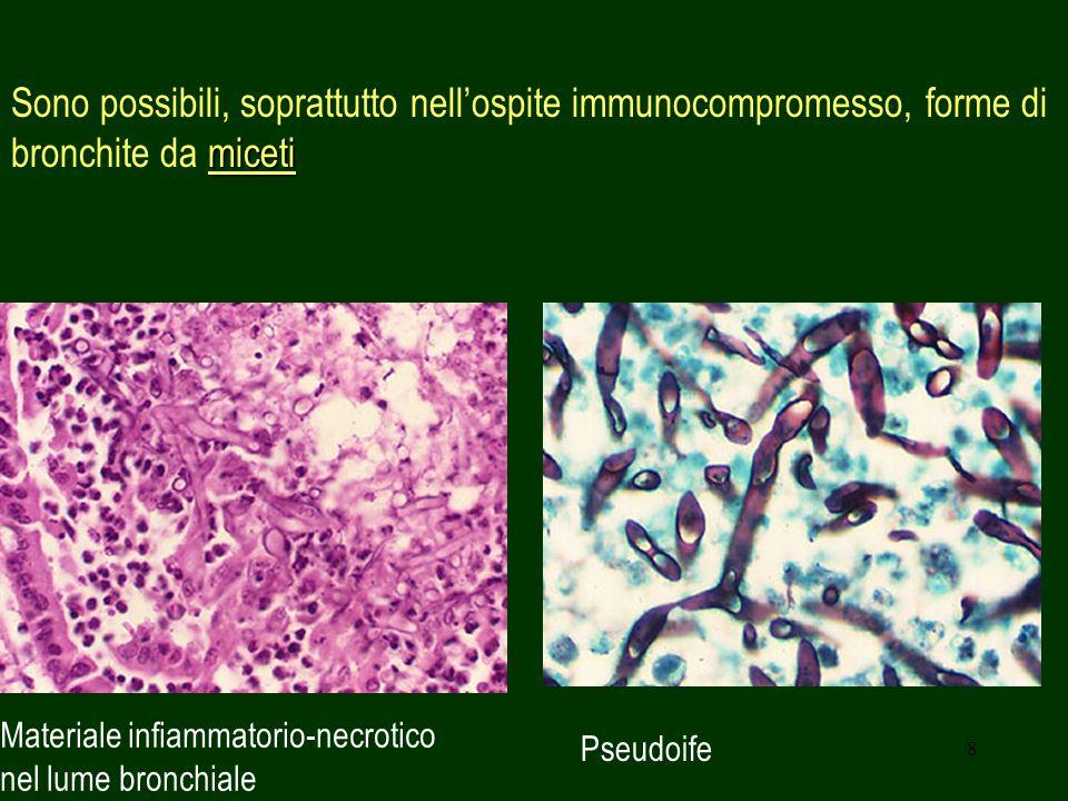 Sono possibili, soprattutto nell'ospite immunocompromesso, forme di bronchite da miceti