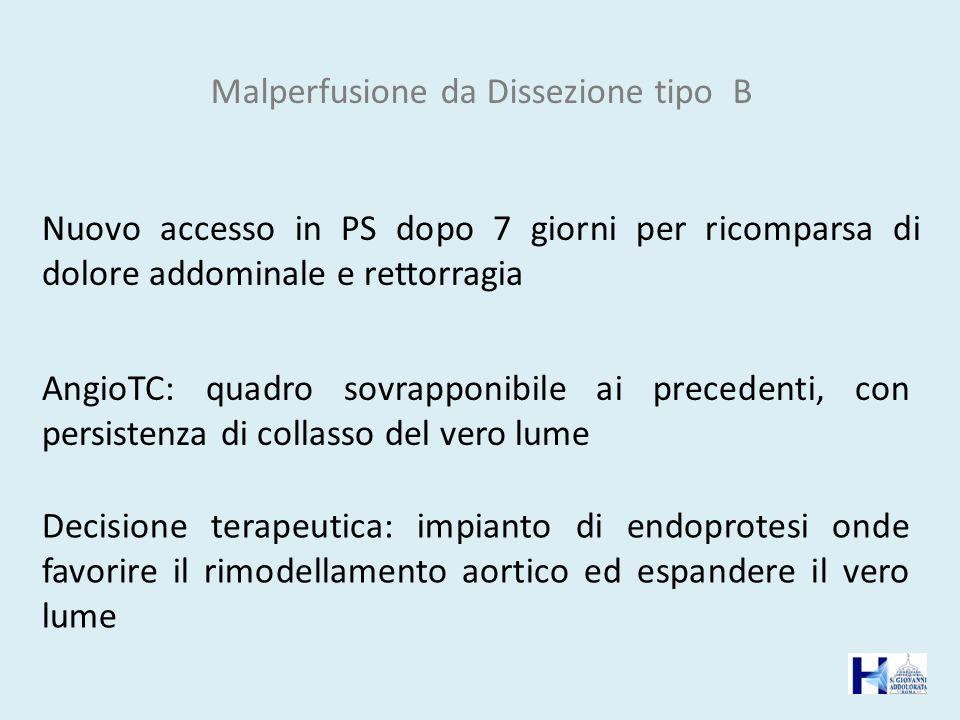 Malperfusione da Dissezione tipo B