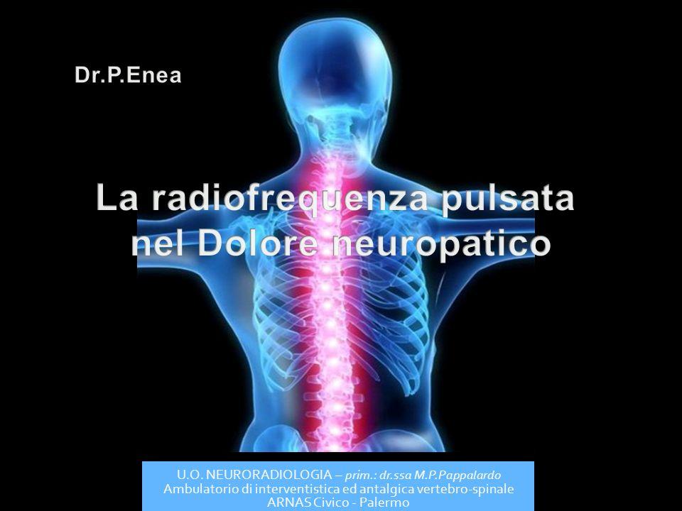 La radiofrequenza pulsata nel Dolore neuropatico