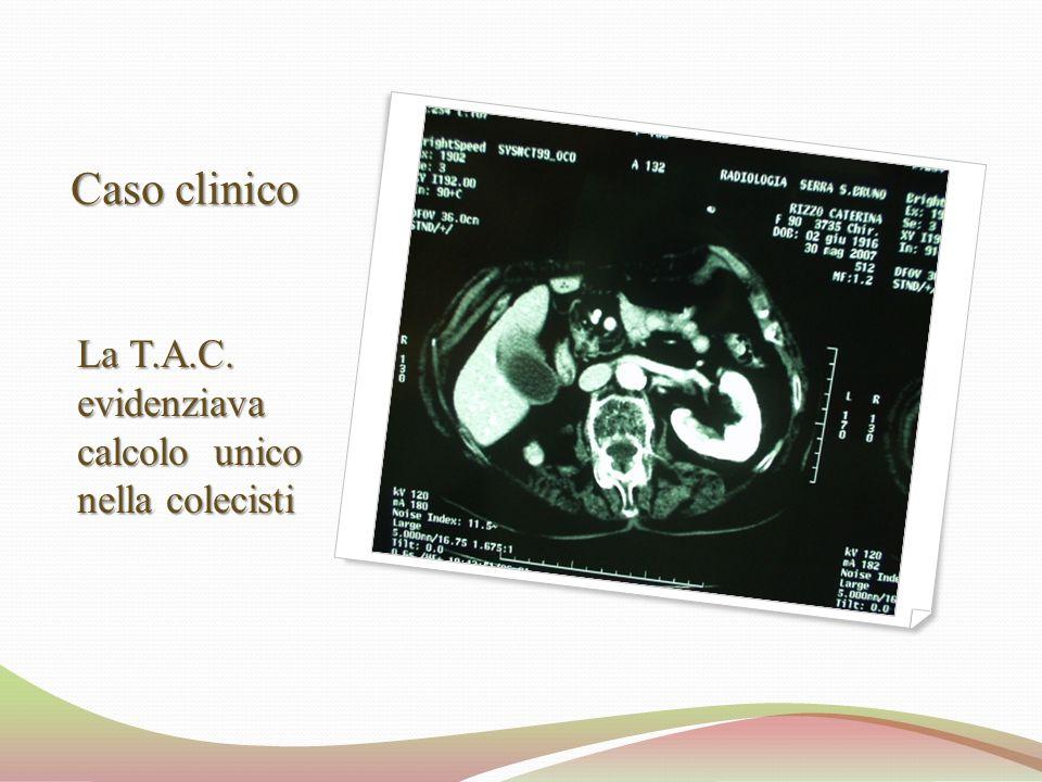 Caso clinico La T.A.C. evidenziava calcolo unico nella colecisti