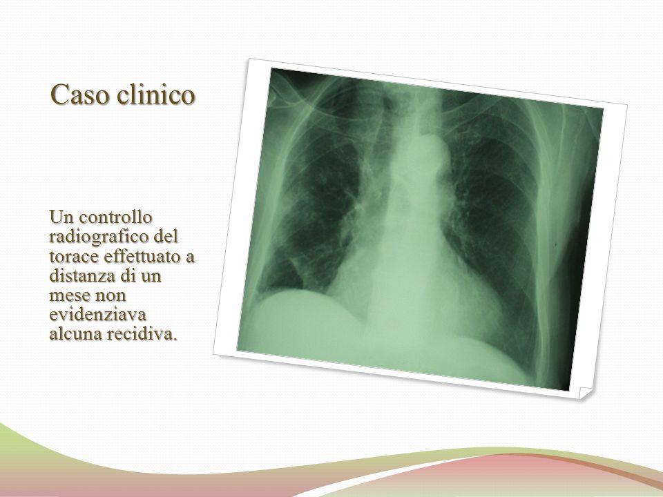 Caso clinico Un controllo radiografico del torace effettuato a distanza di un mese non evidenziava alcuna recidiva.