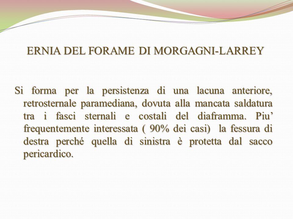 ERNIA DEL FORAME DI MORGAGNI-LARREY