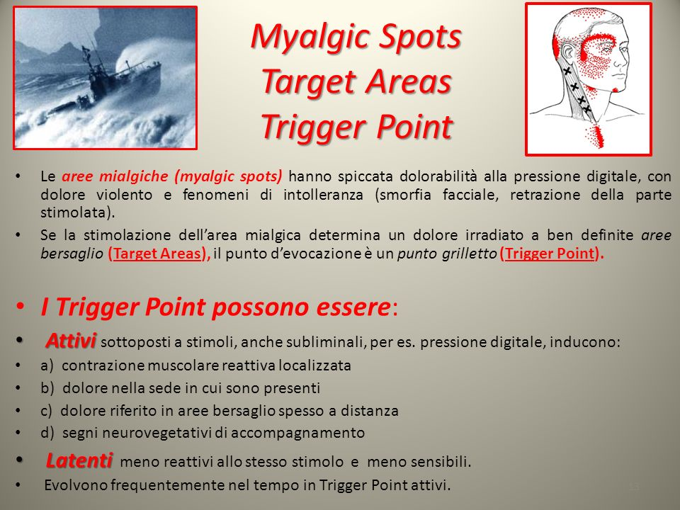Myalgic Spots Target Areas Trigger Point