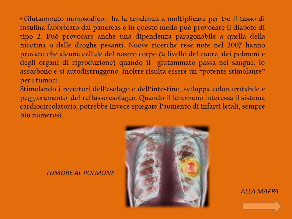 Glutammato monosodico: ha la tendenza a moltiplicare per tre il tasso di insulina fabbricato dal pancreas e in questo modo può provocare il diabete di tipo 2. Può provocare anche una dipendenza paragonabile a quella della nicotina o delle droghe pesanti. Nuove ricerche rese note nel 2007 hanno provato che alcune cellule del nostro corpo (a livello del cuore, dei polmoni e degli organi di riproduzione) quando il glutammato passa nel sangue, lo assorbono e si autodistruggono. Inoltre risulta essere un potente stimolante per i tumori.