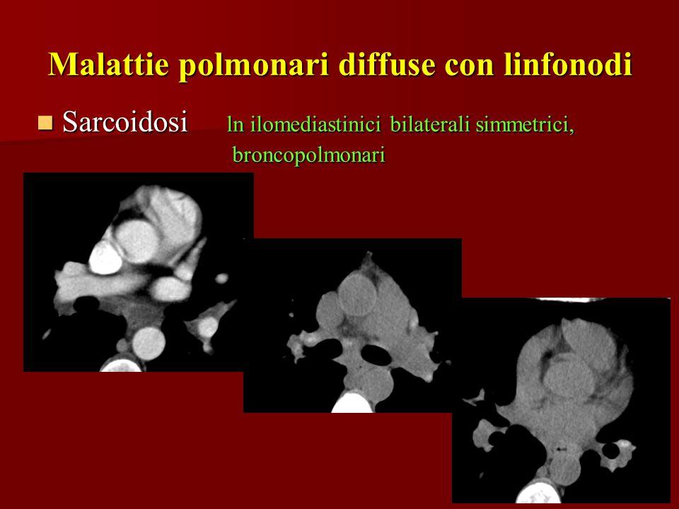 Malattie polmonari diffuse con linfonodi