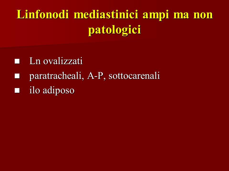 Linfonodi mediastinici ampi ma non patologici