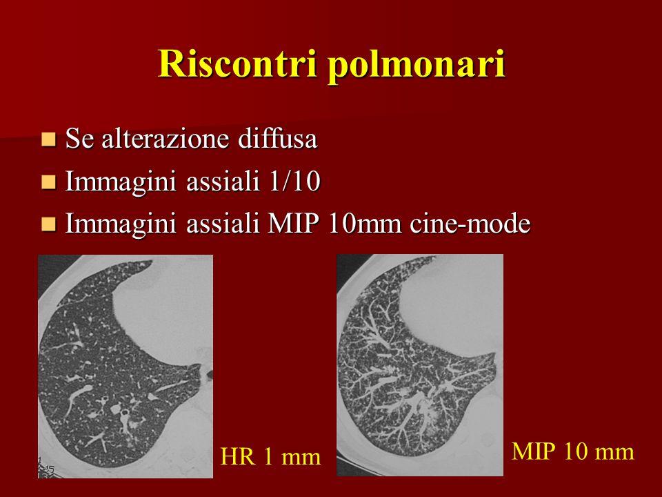 Riscontri polmonari Se alterazione diffusa Immagini assiali 1/10