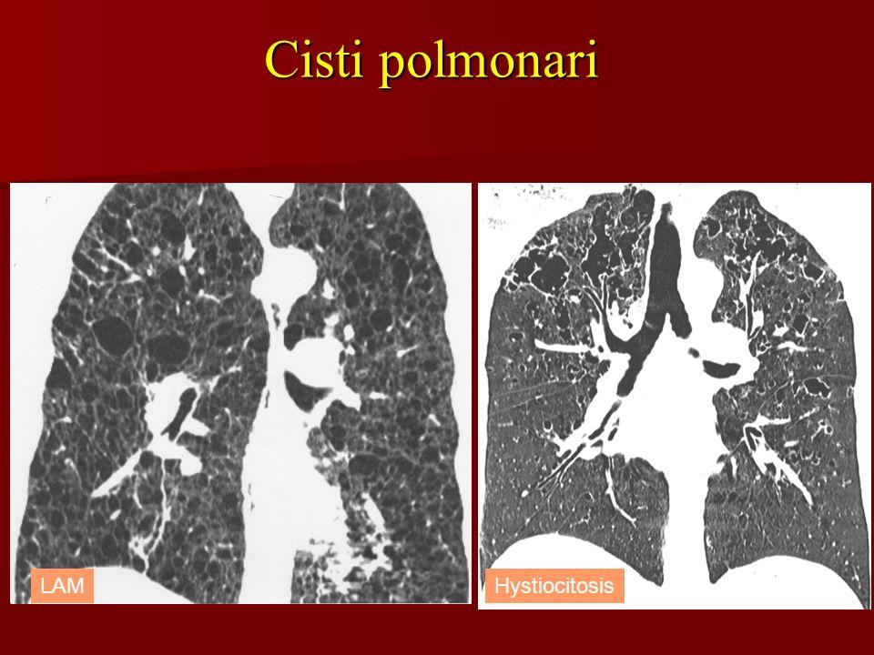 Cisti polmonari LAM Hystiocitosis