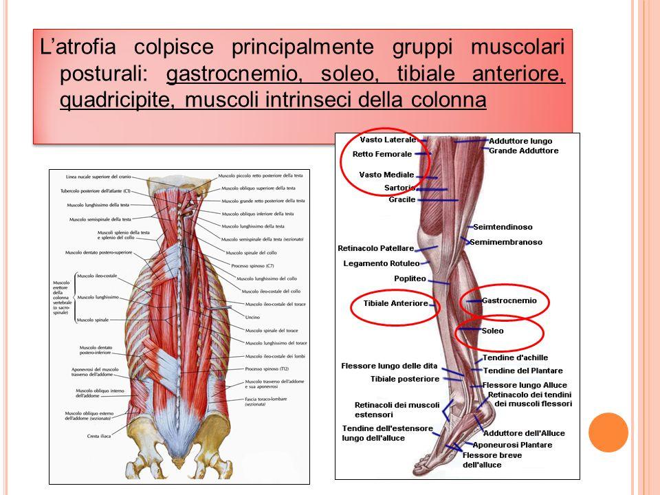 L'atrofia colpisce principalmente gruppi muscolari posturali: gastrocnemio, soleo, tibiale anteriore, quadricipite, muscoli intrinseci della colonna