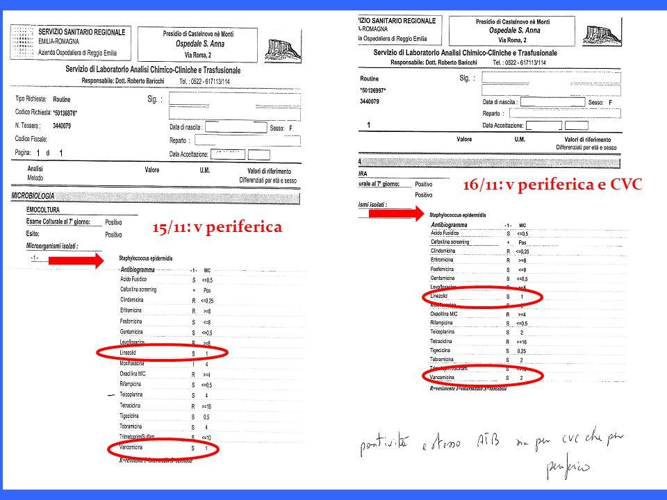 16/11: v periferica e CVC 15/11: v periferica
