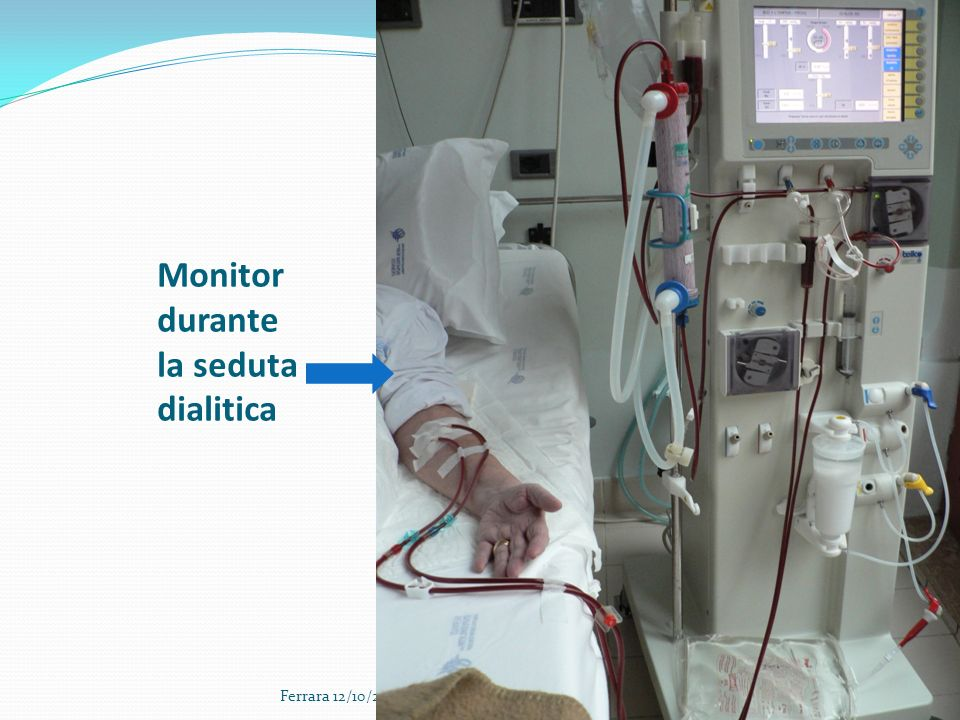 Monitor durante la seduta dialitica Ferrara 12/10/2013