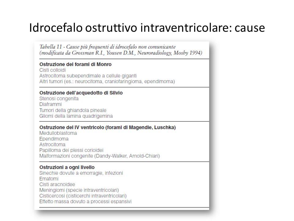 Idrocefalo ostruttivo intraventricolare: cause