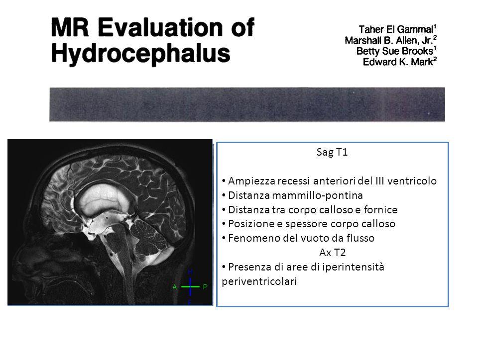 Sag T1 Ampiezza recessi anteriori del III ventricolo. Distanza mammillo-pontina. Distanza tra corpo calloso e fornice.