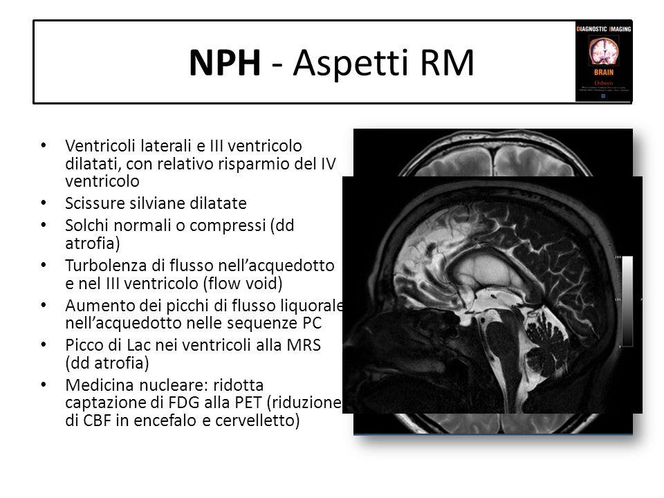 NPH - Aspetti RM Ventricoli laterali e III ventricolo dilatati, con relativo risparmio del IV ventricolo.