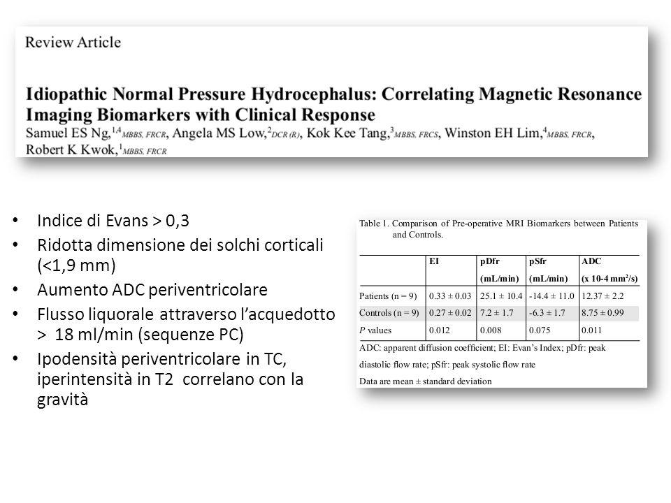 Ridotta dimensione dei solchi corticali (<1,9 mm)