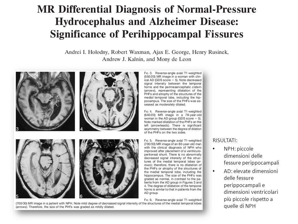 RISULTATI:NPH: piccole dimensioni delle fessure perippocampali.