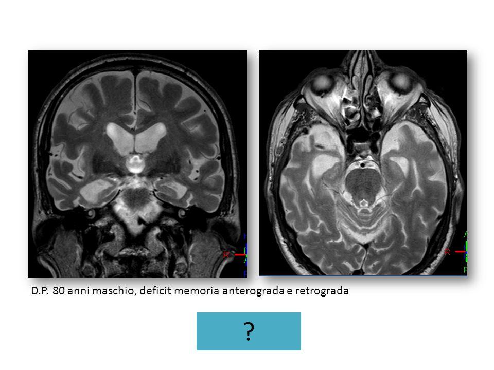 D.P. 80 anni maschio, deficit memoria anterograda e retrograda