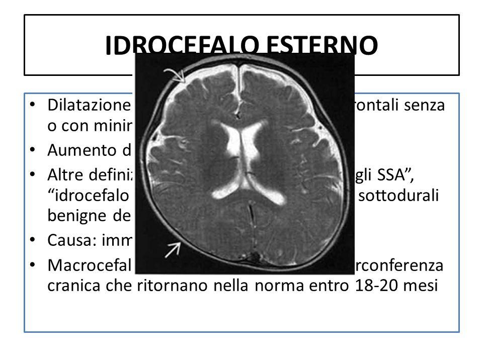 IDROCEFALO ESTERNODilatazione degli SSA prevalentemente frontali senza o con minima dilatazione ventricolare.